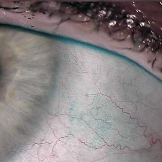 Trockene Auge - Lissamingrün