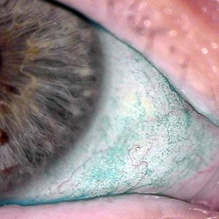 Trockenes Auge - Lissamingrün