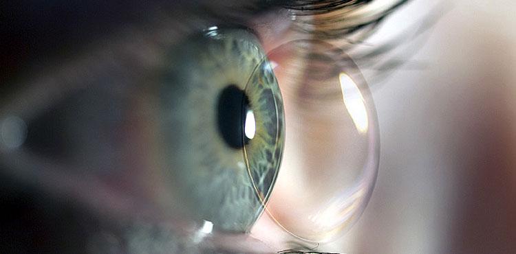 Multifokal Kontaktlinsen