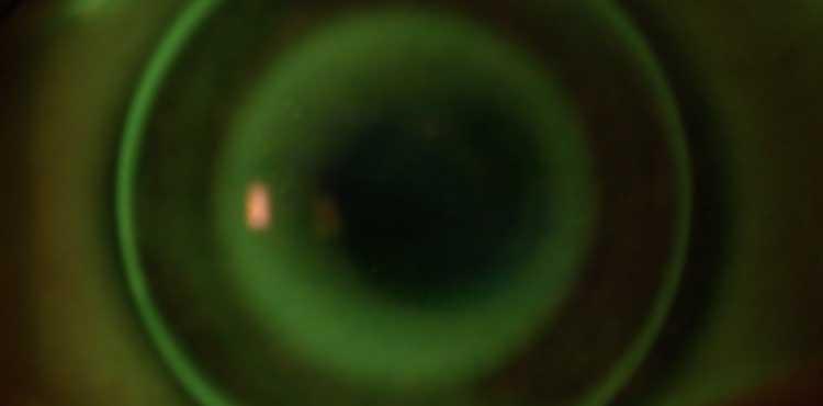 Nachtlinsen